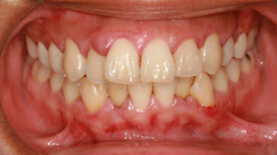 Is there a home remedy for swollen gums?