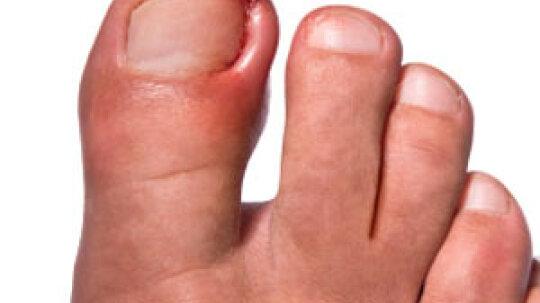 How to Treat an Ingrown Nail