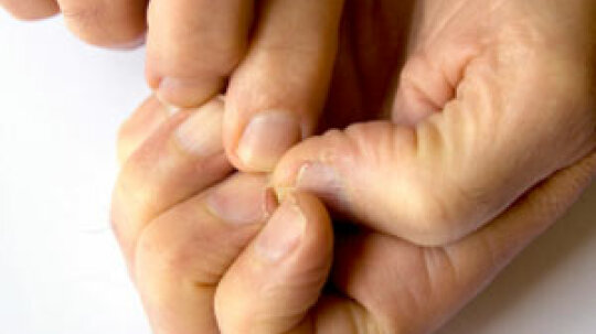 How to Treat Cracked Nails
