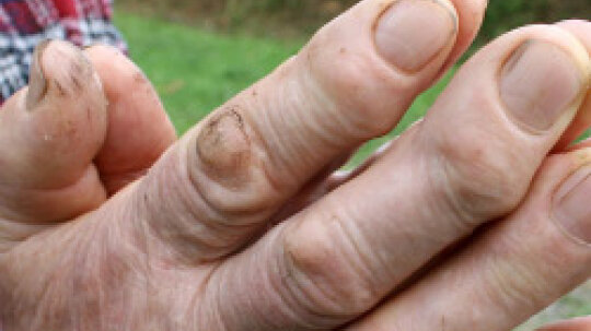 5 Ways to Treat Flat Warts