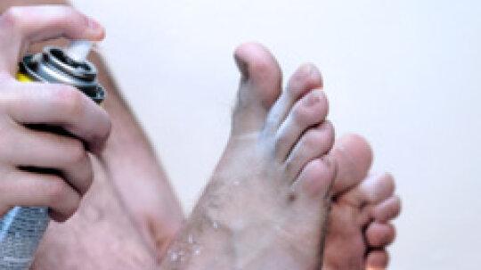 5 Types of Skin Fungus