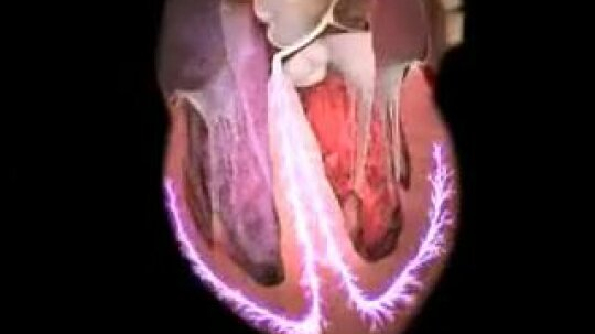 What are some vascular diseases?