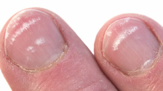 At a Glance: White Dots on Your Nails