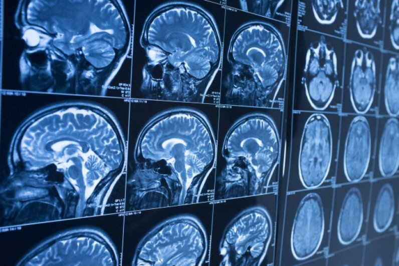 We can thank the human brain, and a few other key items, for keeping our race alive all these years. iStock/Thinkstock