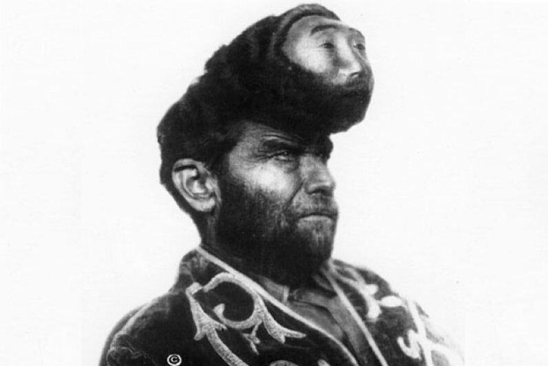 Pasquale Pinon's masked tumor became an oddity when a promoter gave him the chance of a lifetime. Freaks: Collectie Akimitsu Naruyama: de exploitatie van menselikje fysieke fenomenen in circusses en reizende gezelschappen