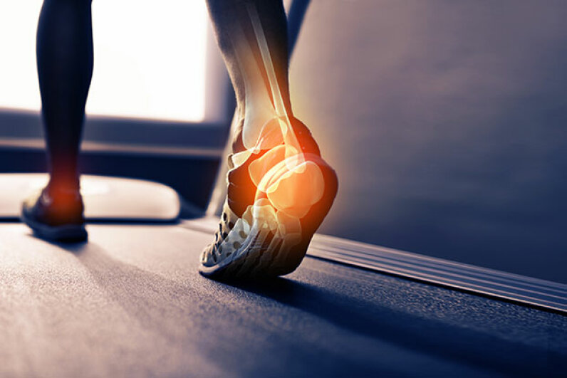 Plantar fasciitis is a common cause of heel pain. Botox can help to treat it, says one study. PeopleImages.com/Digital Vision/Getty Images