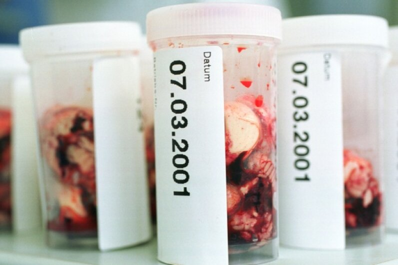 Brain samples from slaughtered cows wait to be tested for mad cow disease in Germany Sean Gallup/Newsmakers/Getty Images