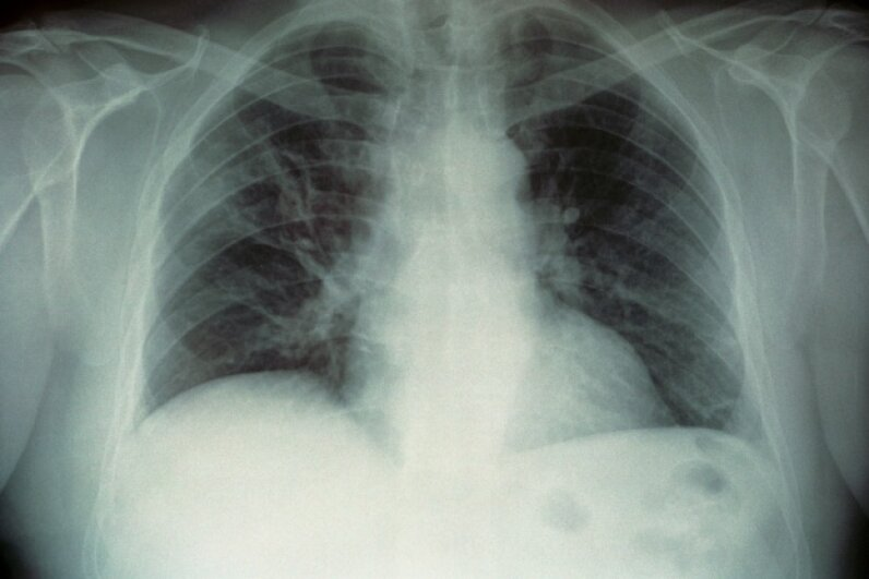 X-ray from a patient's lungs infected with Legionella pneumophila Universal Images Group/Getty Images