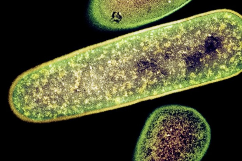 A colored transmission electron micrograph (TEM) of Clostridium difficile bacteria, one common culprit behind gastroenteritis. Dr. Kari Lounatmaa/Getty Images