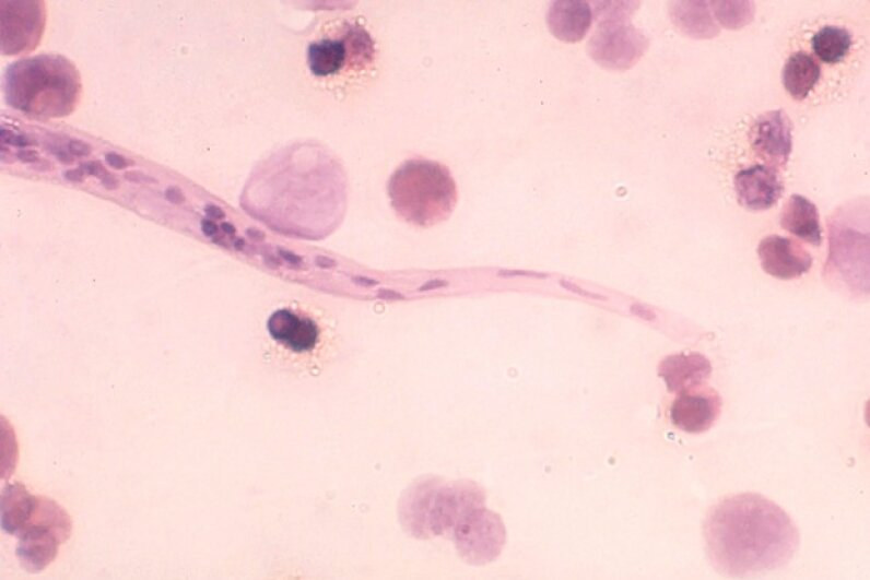 The Loa loa worm is one of many parasites that can harm humans. ©BSIP/UIG Via Getty Images