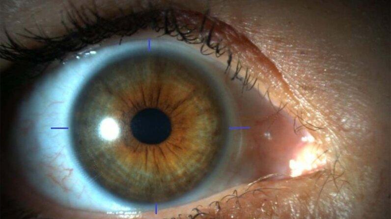 cornea, 3-D