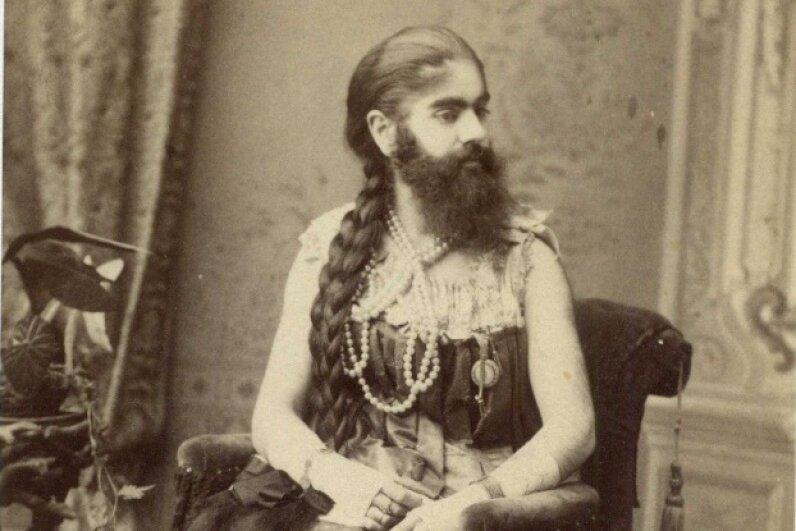 Annie Jones' hirsutism made her a big hit in sideshows. Charles Eisenmann/Public Domain