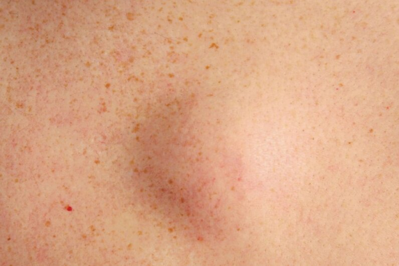 Most fatty deposits appear as soft lumps just beneath the skin. © Jodi Jacobson/Getty