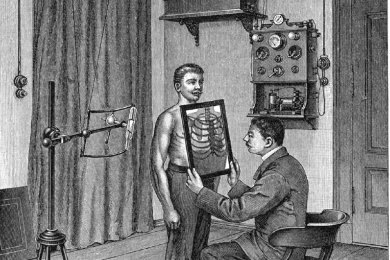 In this illustration from 1903, a doctor  examines a patient's thorax using an X-ray tube and fluorescent screen.  X-rays were discovered in 1895 and immediately used in medicine. Universal Images Group Editorial/Getty Images
