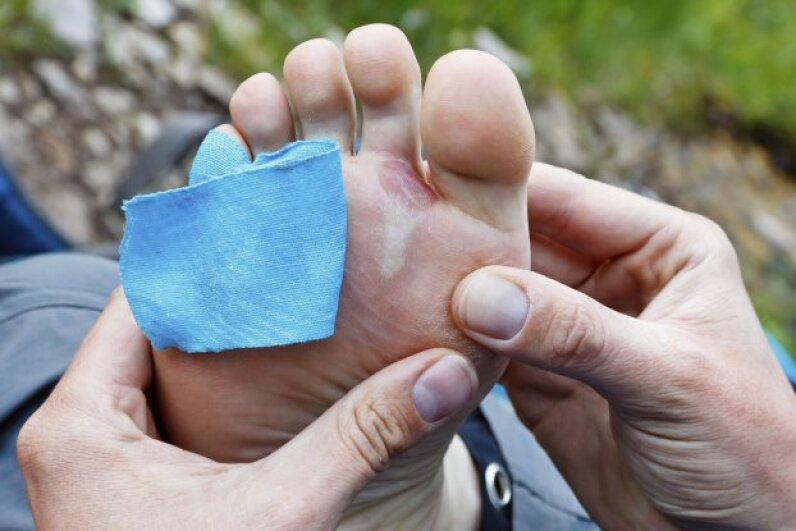 Blistered foot with kinesio tape ©iStockphoto/Thinkstock