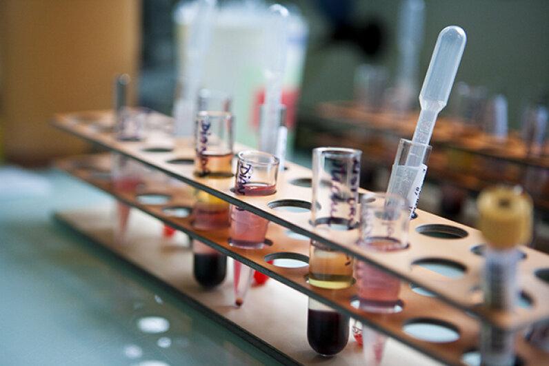 Bone marrow transplants can cause criminal mix-ups. BSIP/UIG Via Getty Images