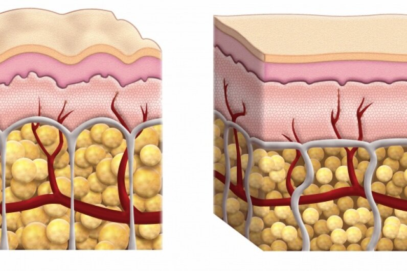 This cross-section diagram shows skin that exhibits cellulite and skin that doesn't. Aside from the size of the fat cells, the components of each are the same. © james steidl/iStock/Thinkstock