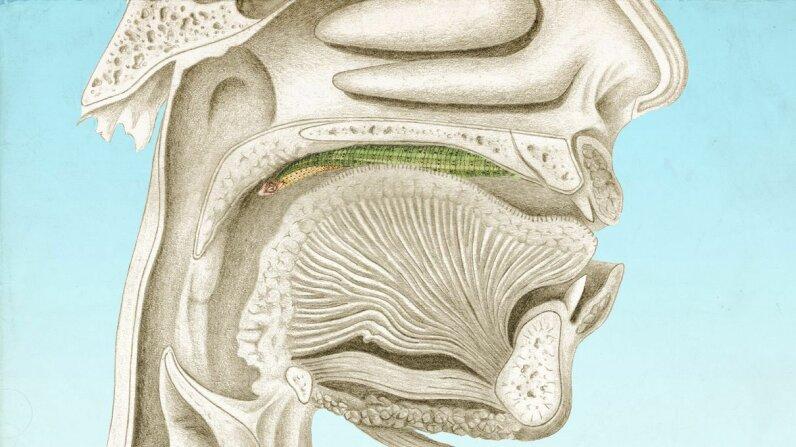 Leeches in human throat