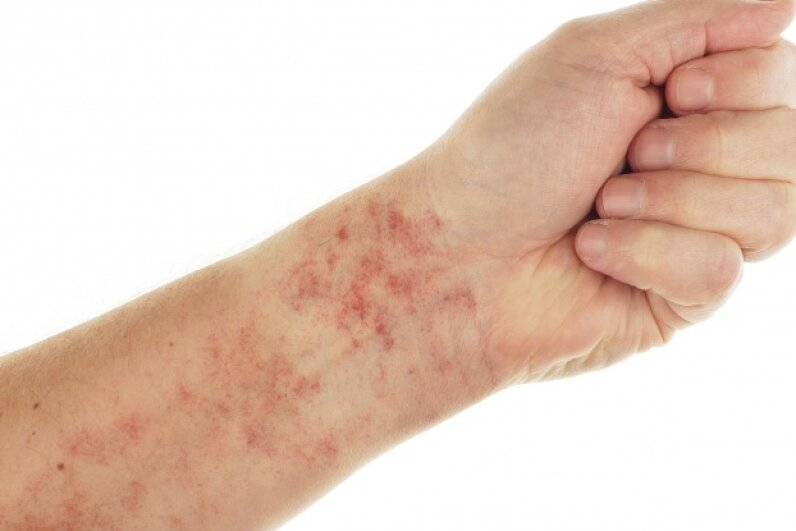 If it turns white when you touch it, your rash most likely does not merit a rush trip to a doctor. © andylid/iStockphoto