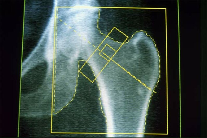 This image shows the left hip of an elderly woman with osteoporosis. Studies of Russian cosmonauts who spent months in space found that they lost as much as 20 percent of their bone mass during their stay. Universal Images Group/Getty Images