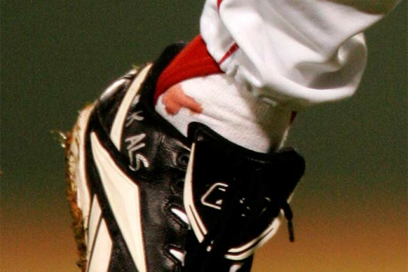 A blood stain shows on the sock of Boston Red Sox pitcher Curt Schilling as he pitches against the St. Louis Cardinals in the first inning of Game 2 of the World Series at Fenway Park in Boston, 2004. Detractors said the stain was really ketchup. © RAY STUBBLEBINE/Reuters/Corbis