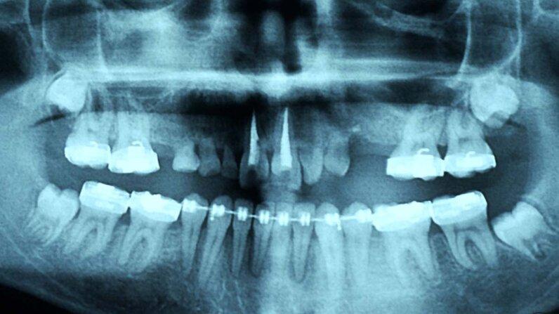 baby teeth, permanent teeth