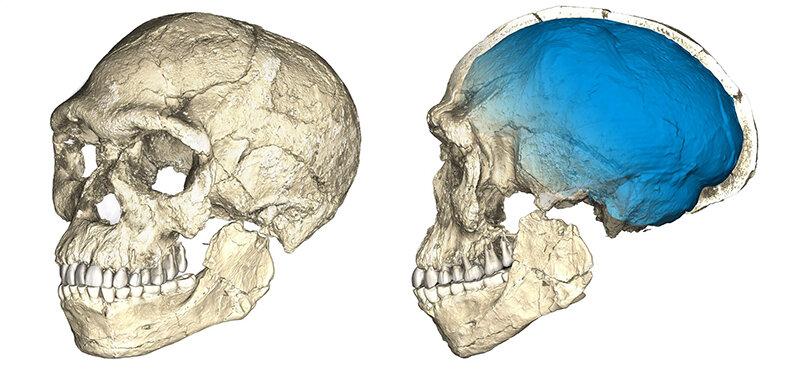scans of skulls