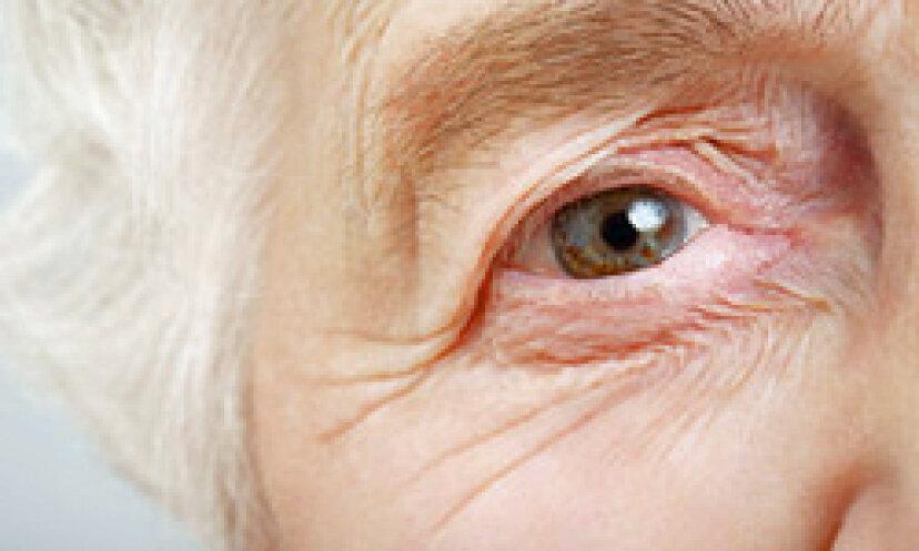 加齢とともに肌が変化する5つの方法