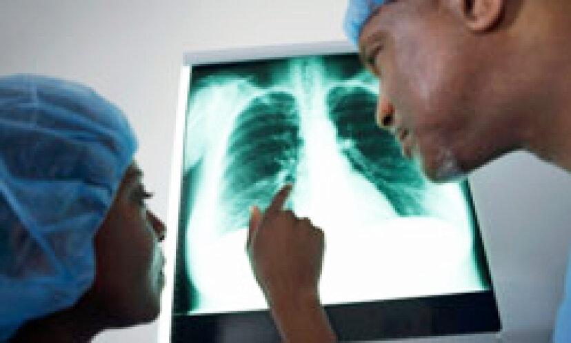 X線放射について知っておくべき5つのこと