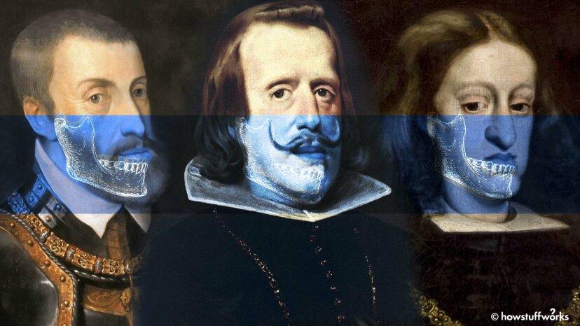 何世紀にもわたる近親交配が特徴的な「ハプスブルク家の顎」にどのようにつながったか