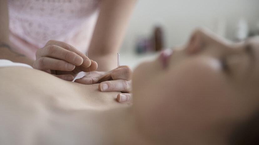 La acupuntura no ayuda a las mujeres con síndrome de ovario poliquístico a quedar embarazadas