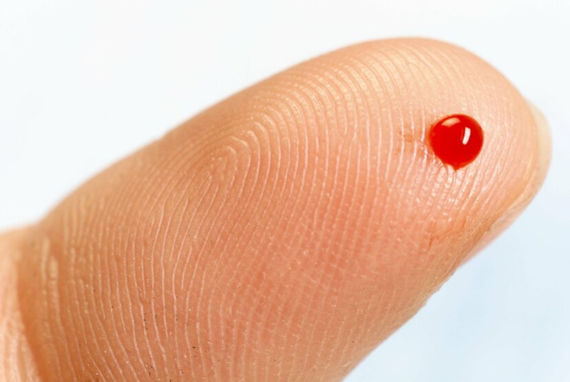 自分の血液にアレルギーがある可能性はありますか?