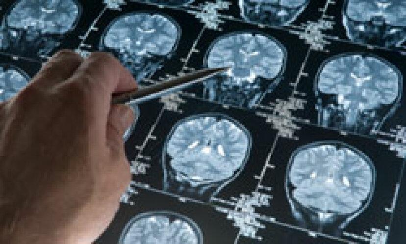 アルツハイマー病の人の世話をしながら対処する