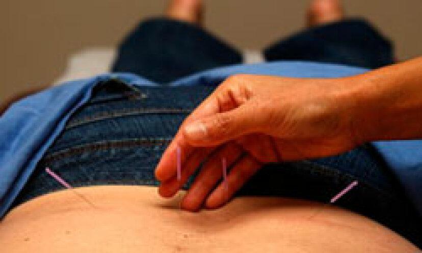 腰痛のための鍼治療