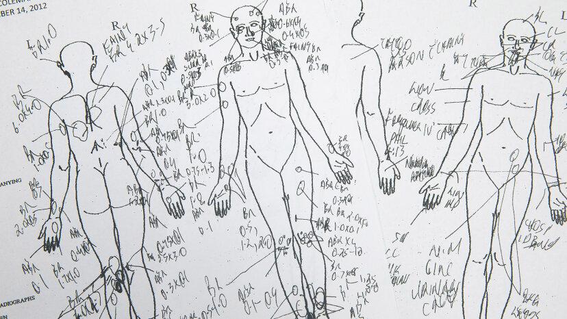 5 cosas que no sabías sobre las autopsias