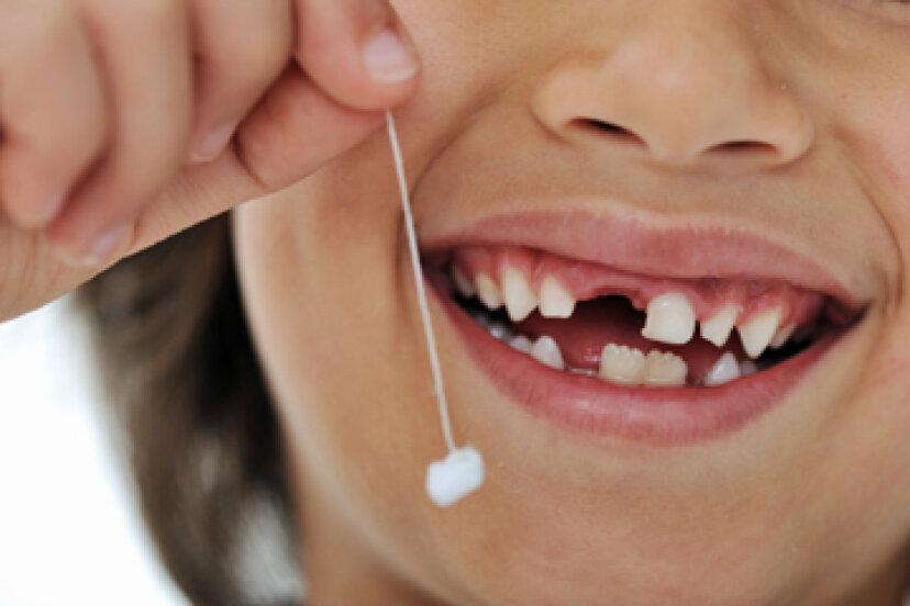 赤ちゃんの歯はどの順番で抜ける?