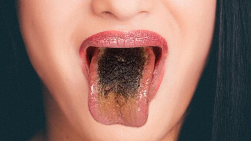 Black Hairy Tongue: Es ist eklig, aber du wirst leben