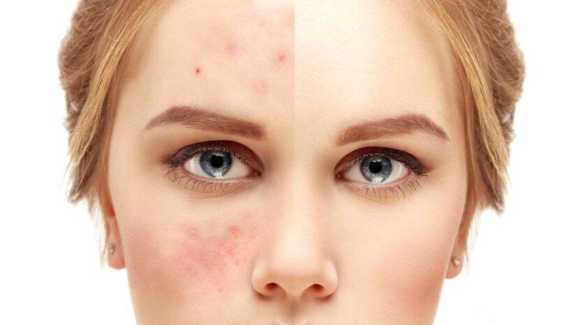 肌はどのようにして油性でありながら乾燥しているのでしょうか?