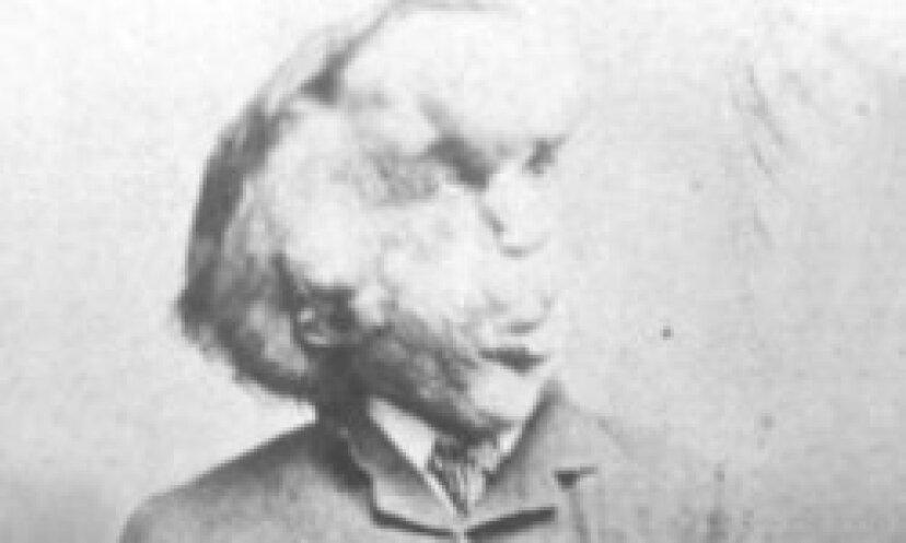 エレファントマン画像ギャラリー