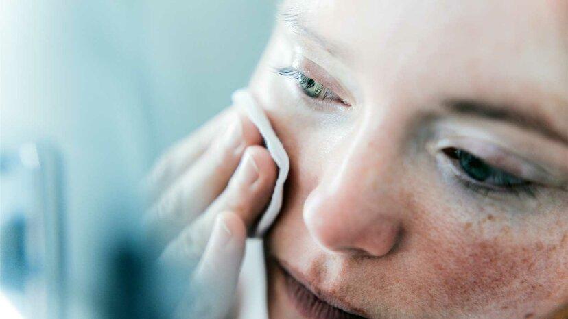 あなたの顔の赤い肌を治療する方法