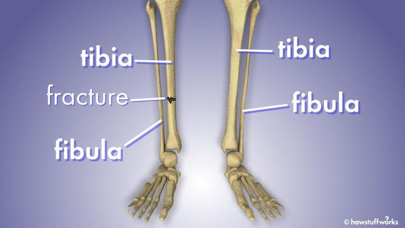 Was ist der Unterschied zwischen Fibula und Tibia?