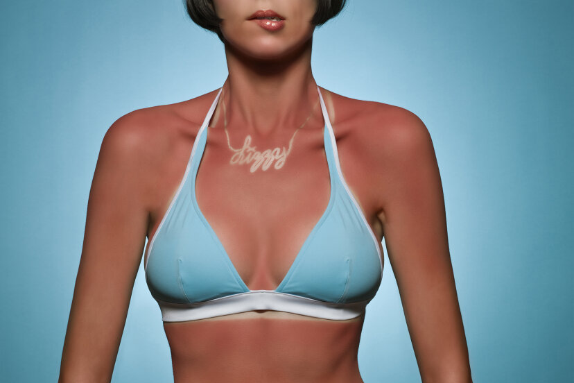 Portrait of woman with sunburn Ralf Nau/Stone/Getty Images