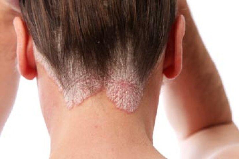 一目で:頭皮の痛み