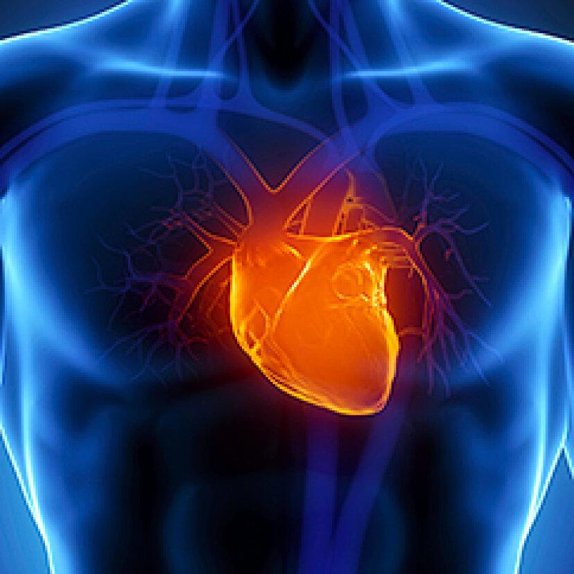 心臓発作の症状は何ですか?