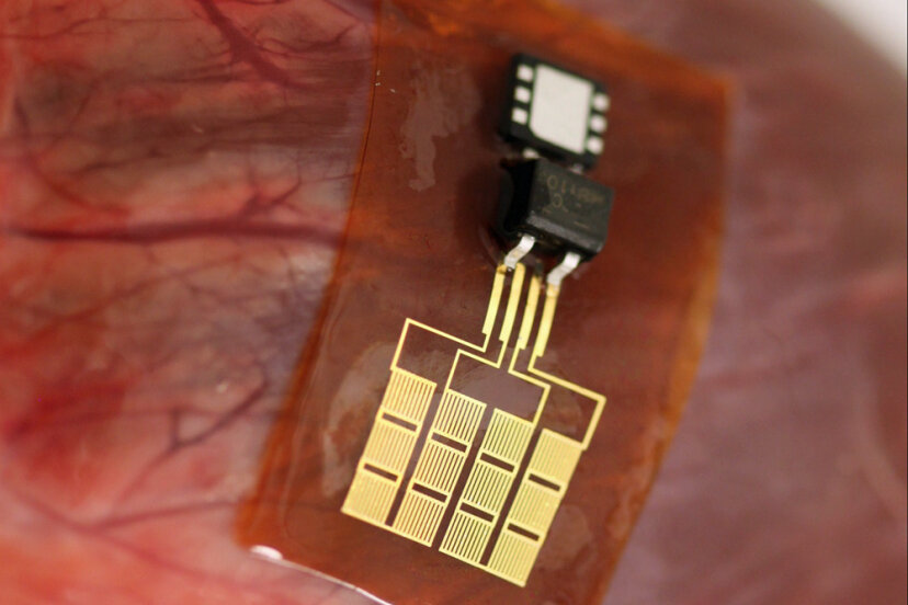 心臓はどのようにして自身のペースメーカーに電力を供給することができますか?