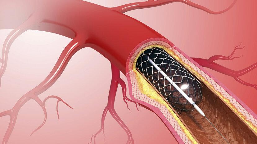 心臓ステントは胸の痛みを和らげることができない、新しい研究が発見