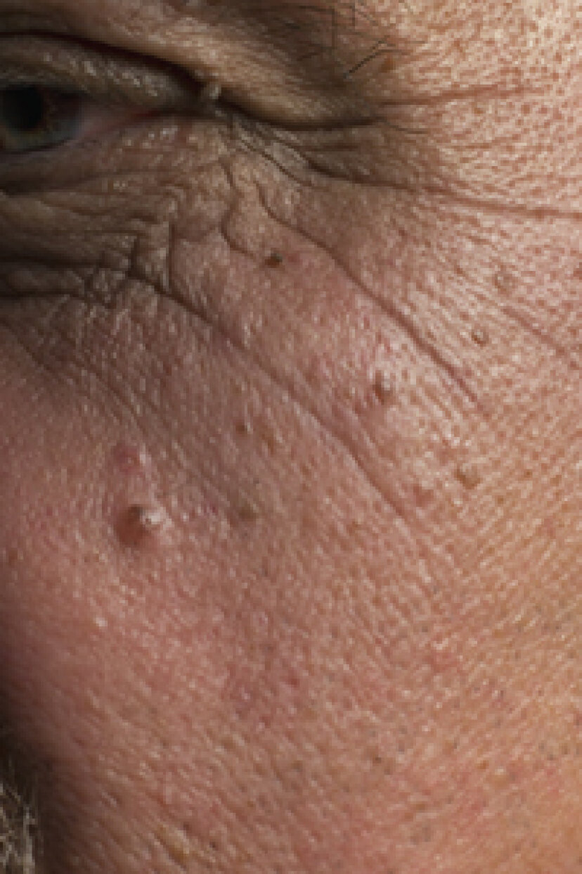 どのくらいの頻度で皮膚科医に診てもらう必要がありますか?