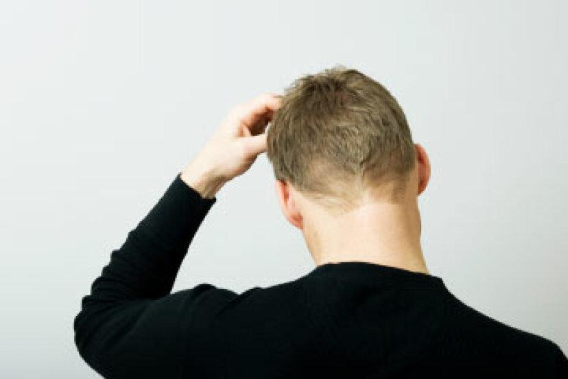 頭皮のかゆみに関する5つの驚くべき事実
