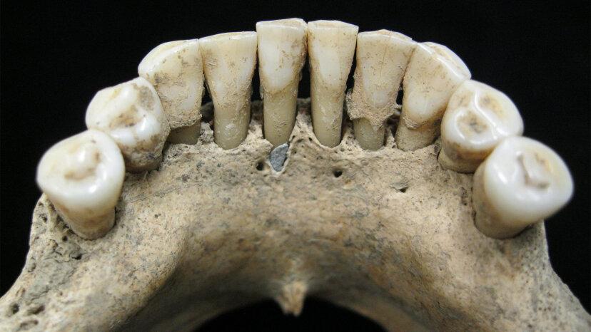 中世ヨーロッパの女性の歯で見つかったラピスラズリ