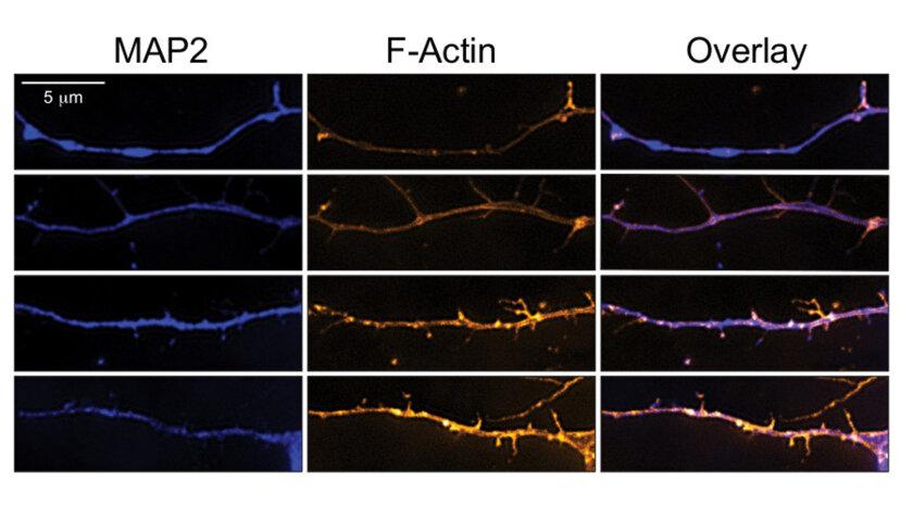 Rat neurons